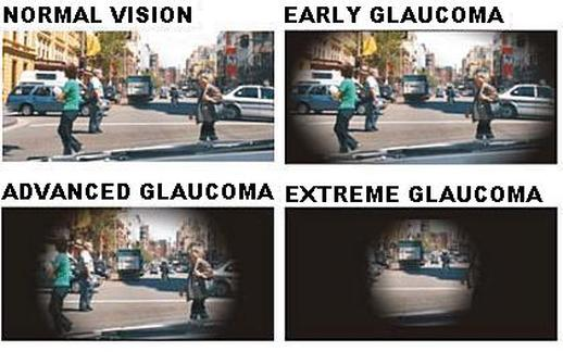 advance glaucoma