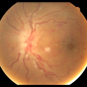 Hypertensive Retinopathy (high blood pressure)